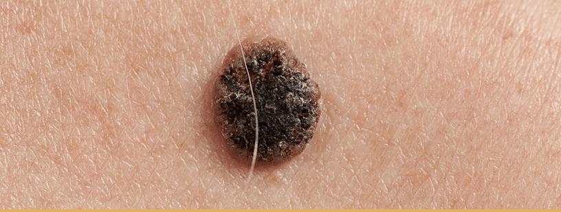 dermaclinica_carcinoma-v01